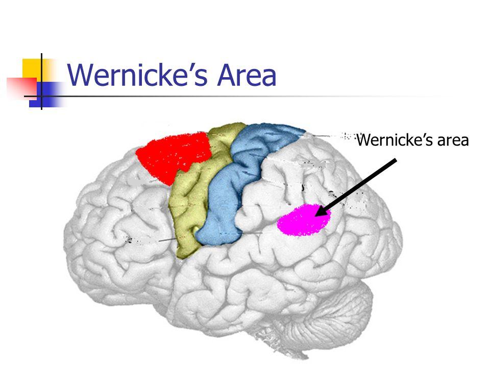 Wernicke's Area Wernicke's area