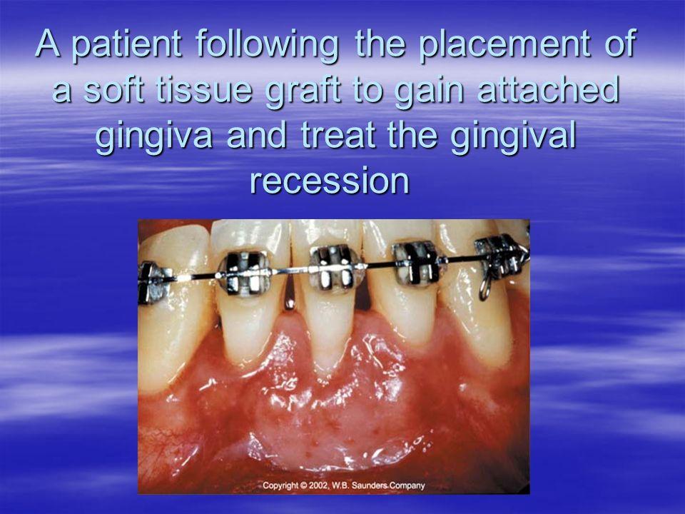 epidemiology of periodontal disease pdf