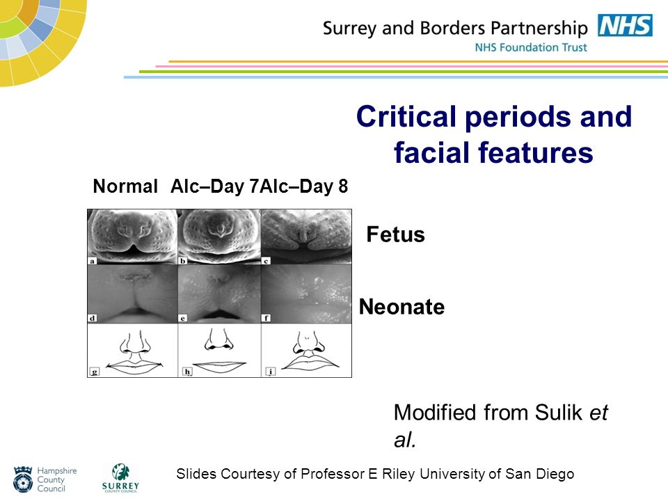 Critical periods and facial features