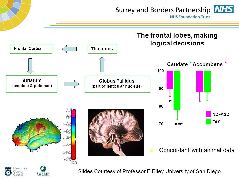 The frontal lobes, making logical decisions