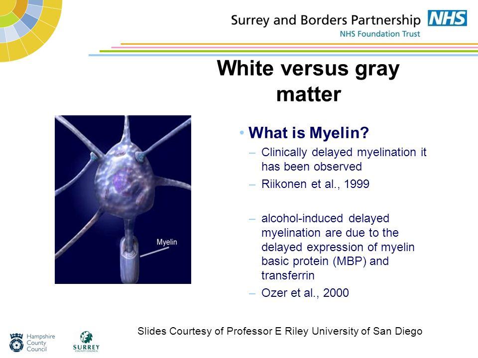 White versus gray matter