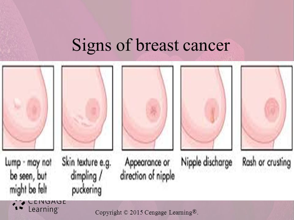 signs and symptoms of breast cancer pdf