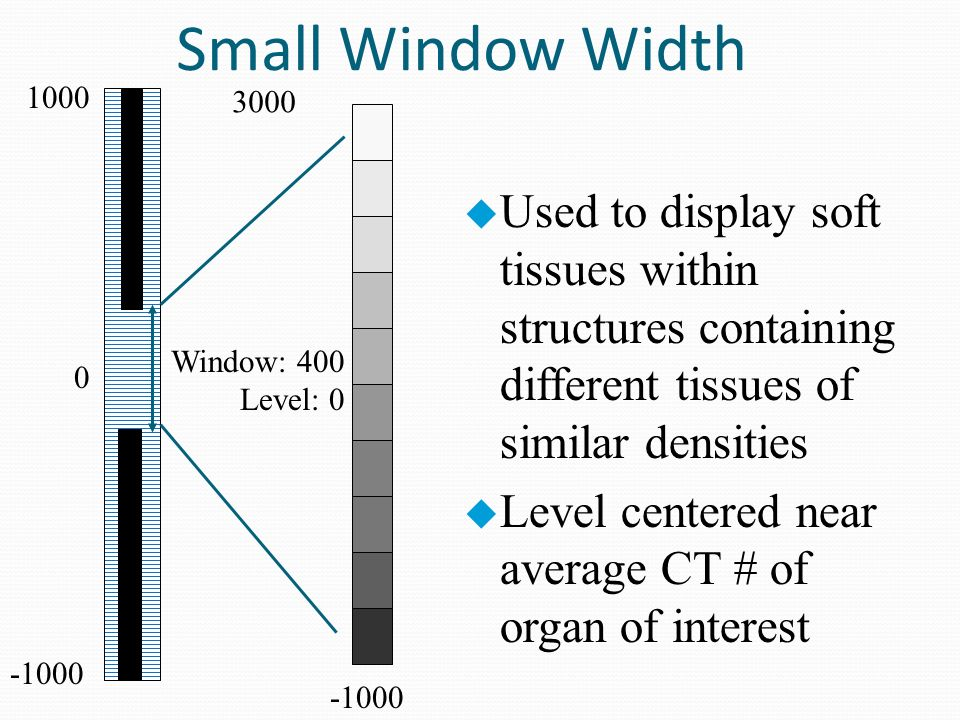 Seeram chapter 9 image manipulation in ct ppt video for Window width