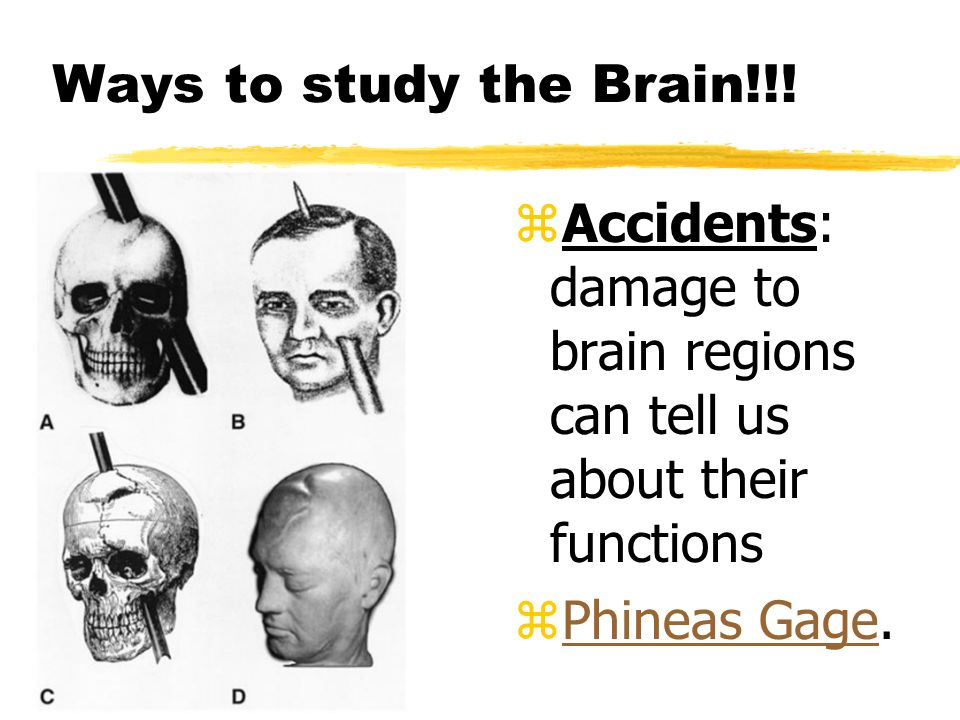 Ways to study the Brain!!. Accidents: damage to brain regions can tell us about their functions.