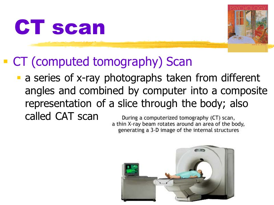 CT scan CT (computed tomography) Scan