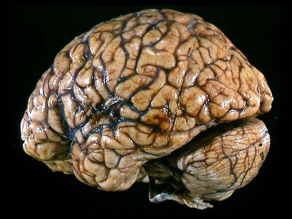 Formaldehyde Brain The Brain Module 4 Onl...