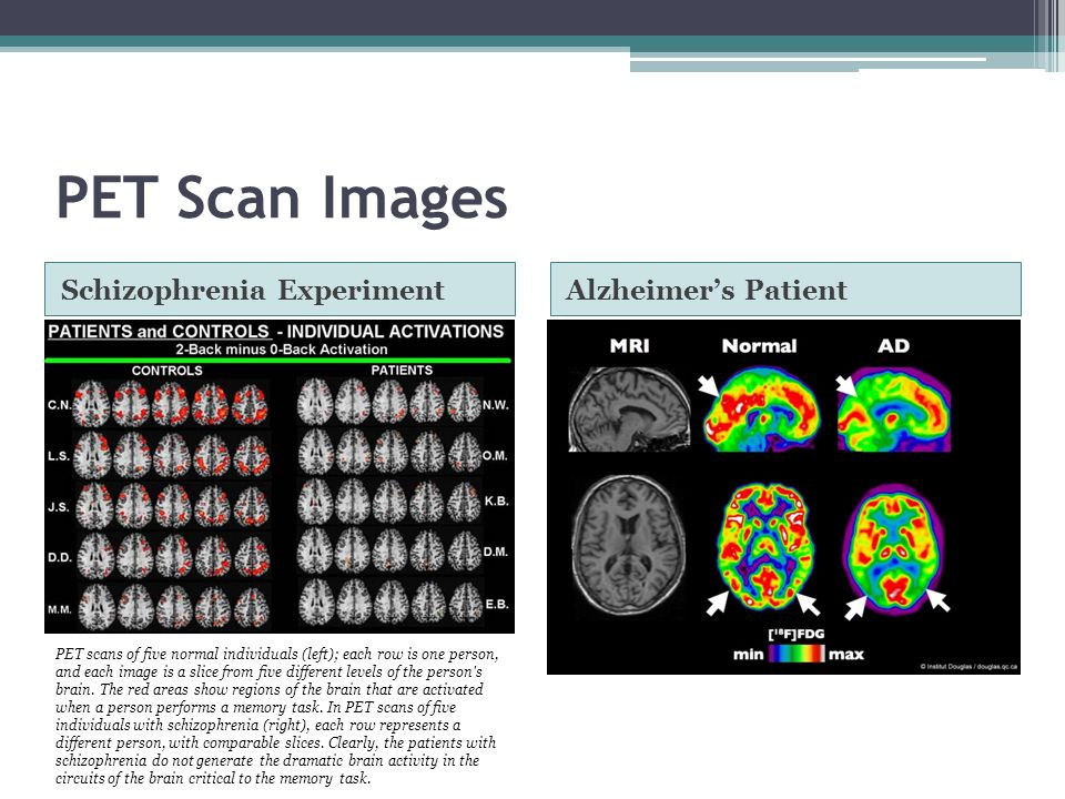 Positron Emission Tomography (PET) definition | Psychology ...