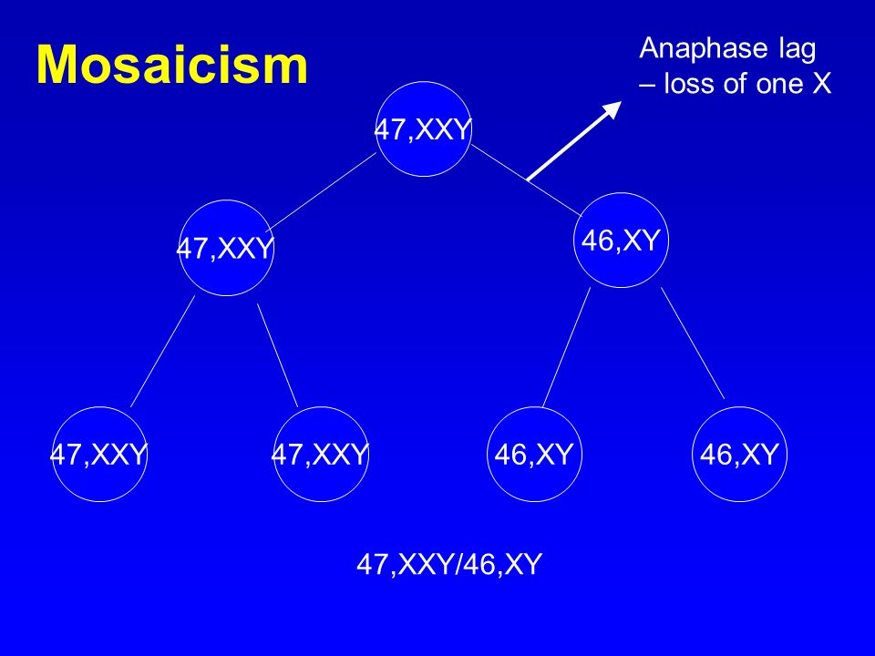Mosaicism Anaphase lag – loss of one X 47,XXY 46,XY 47,XXY 47,XXY