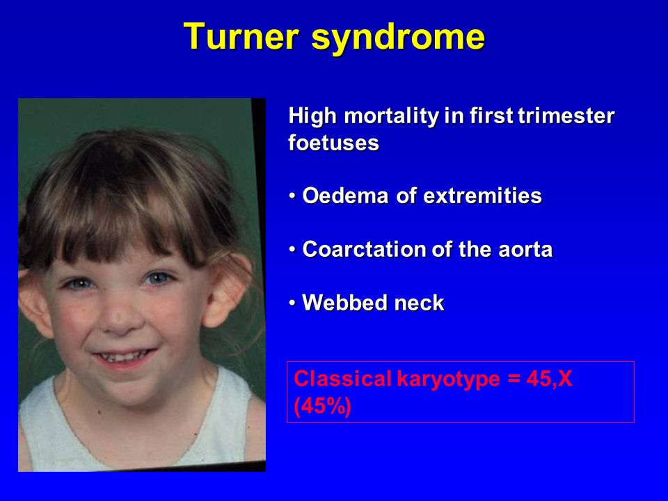 Turner syndrome High mortality in first trimester foetuses