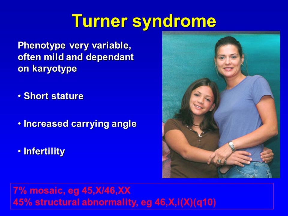Turner syndrome Phenotype very variable, often mild and dependant on karyotype. Short stature. Increased carrying angle.