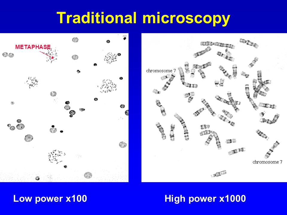 Traditional microscopy