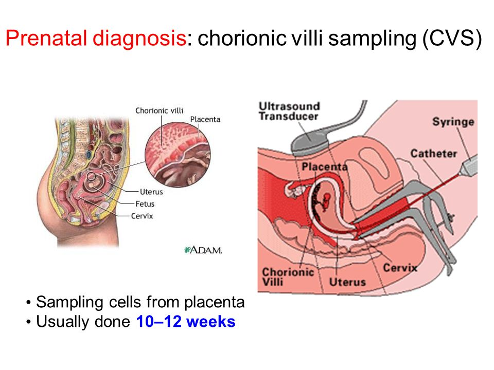Prenatal diagnosis: chorionic villi sampling (CVS)