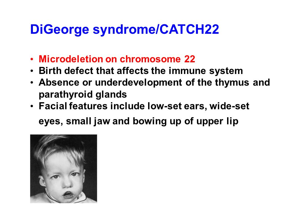 DiGeorge syndrome/CATCH22