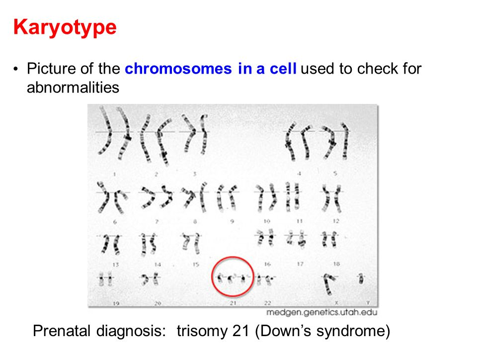 Karyotype Picture of the chromosomes in a cell used to check for abnormalities.