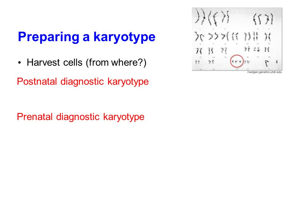 Preparing a karyotype Harvest cells (from where )