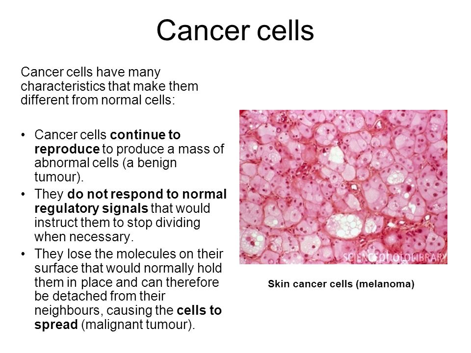 Cancer cells Cancer cells have many characteristics that make them different from normal cells: