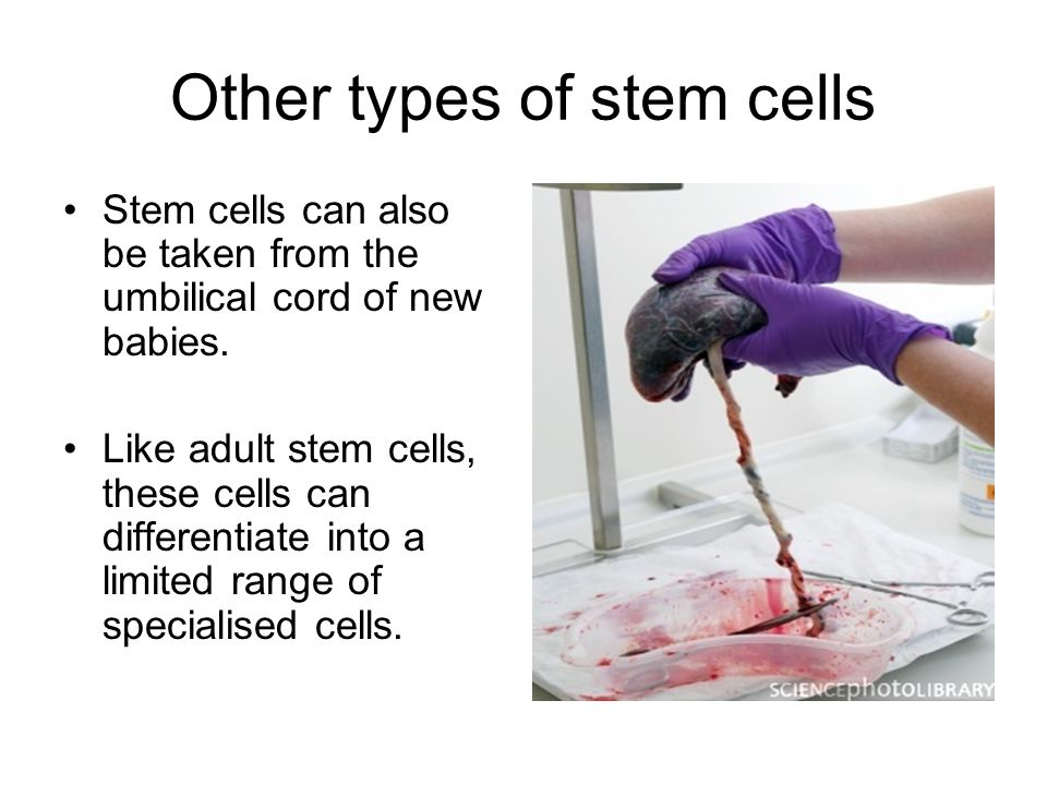 Other types of stem cells