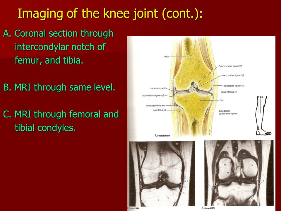 The Knee Joint Type: Synovial, modified hinge - ppt video ... Hinge Joint Knee