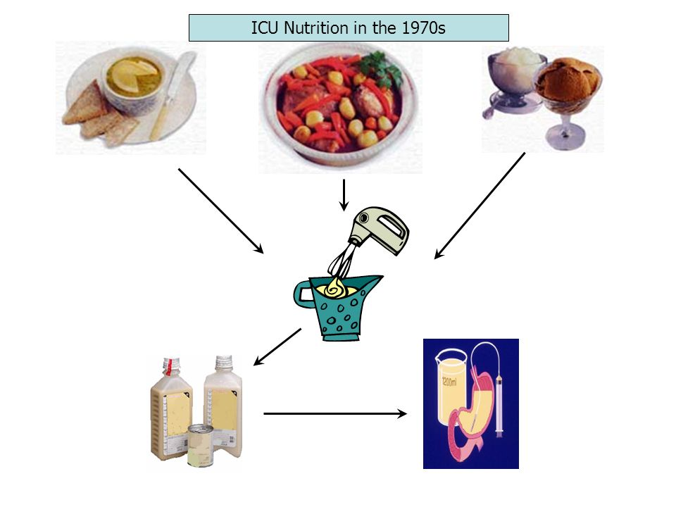 ICU Nutrition in the 1970s
