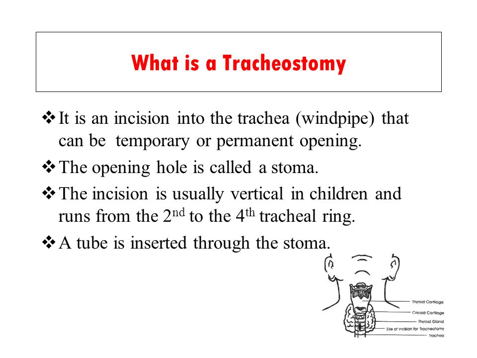 What is a Tracheostomy It is an incision into the trachea (windpipe) that can be temporary or permanent opening.