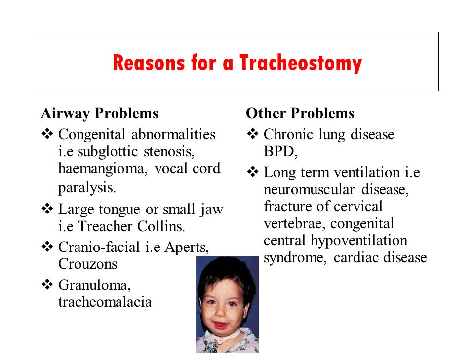 Reasons for a Tracheostomy