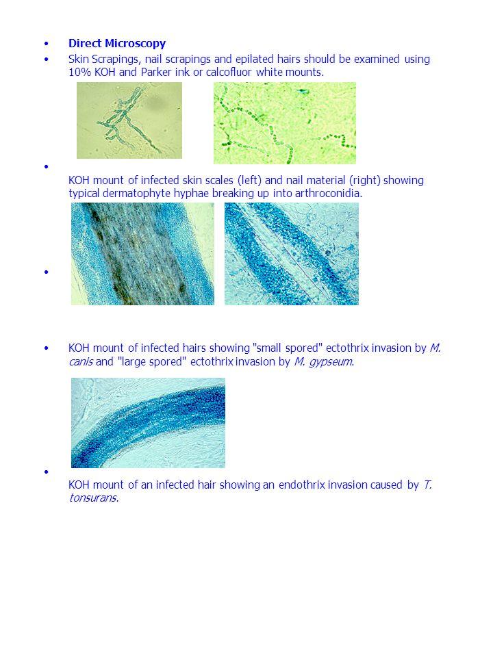 Dermatophytes Infection - ppt video online download