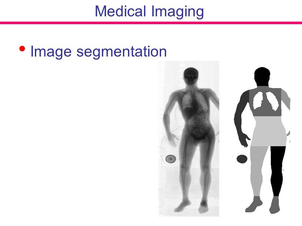 Medical Imaging Image segmentation