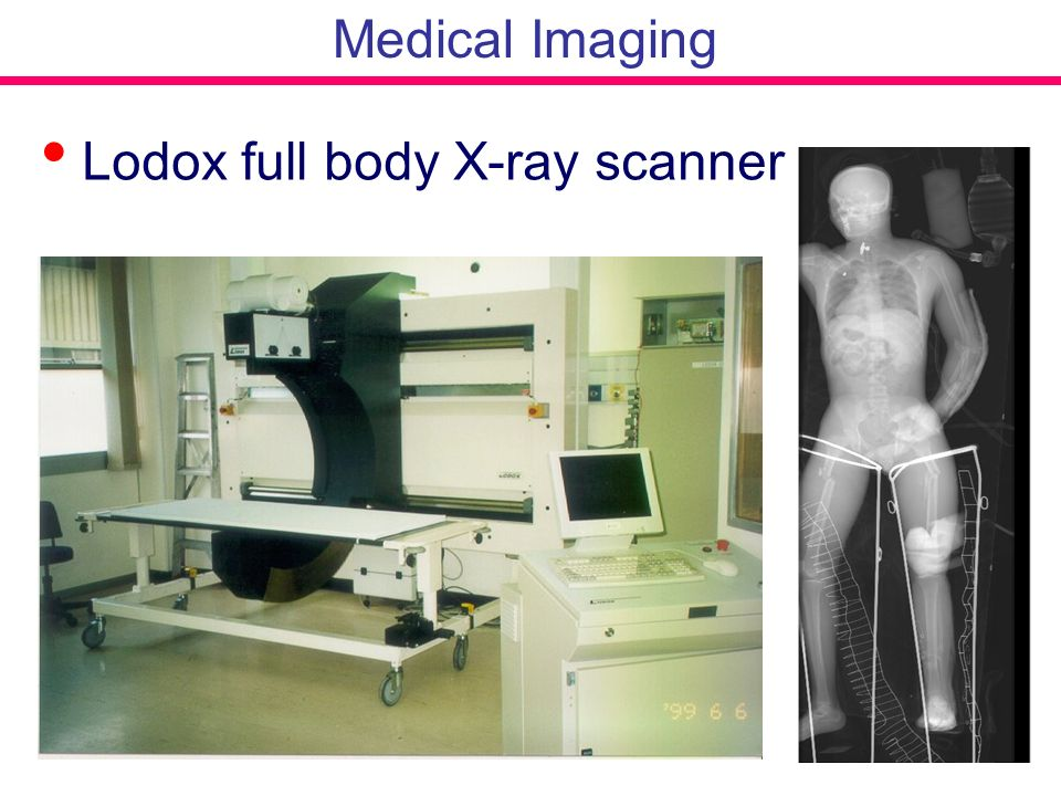 Medical Imaging Lodox full body X-ray scanner