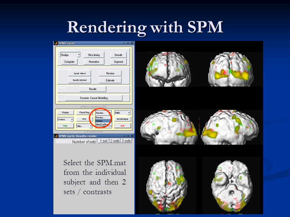 Rendering with SPM Select the SPM.mat from the individual subject and then 2 sets / contrasts