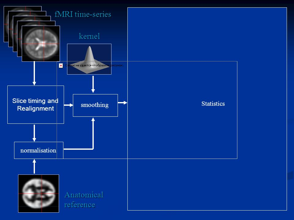 fMRI time-series kernel Anatomical reference Slice timing and