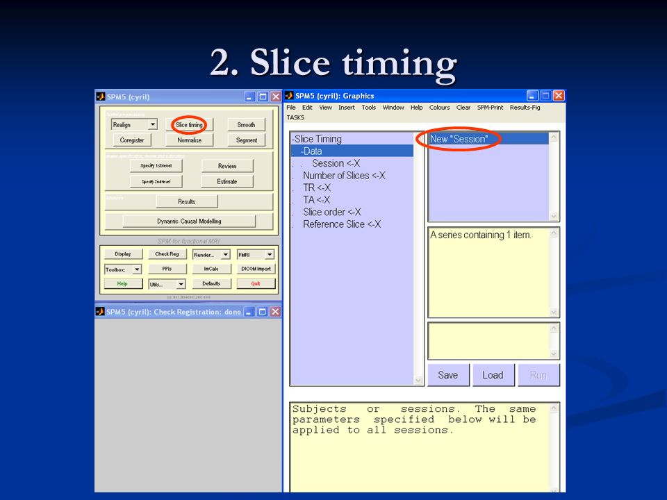 2. Slice timing