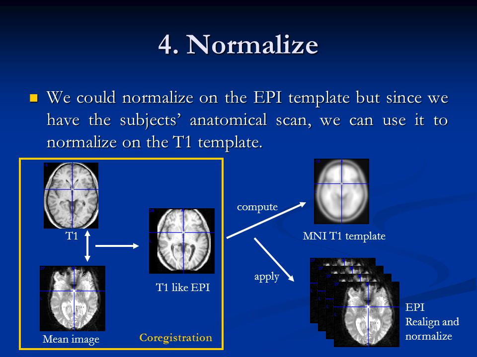 4. Normalize We could normalize on the EPI template but since we have the subjects' anatomical scan, we can use it to normalize on the T1 template.