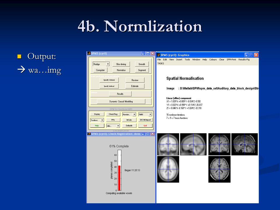 4b. Normlization Output:  wa…img