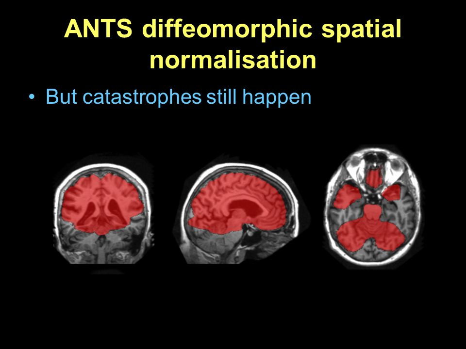 ANTS diffeomorphic spatial normalisation
