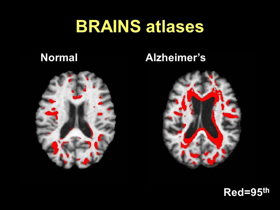 BRAINS atlases Normal Alzheimer's Red=95th