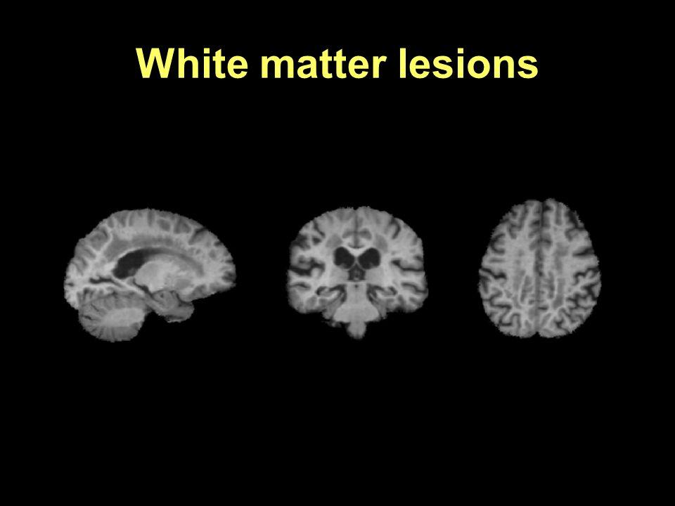 White matter lesions