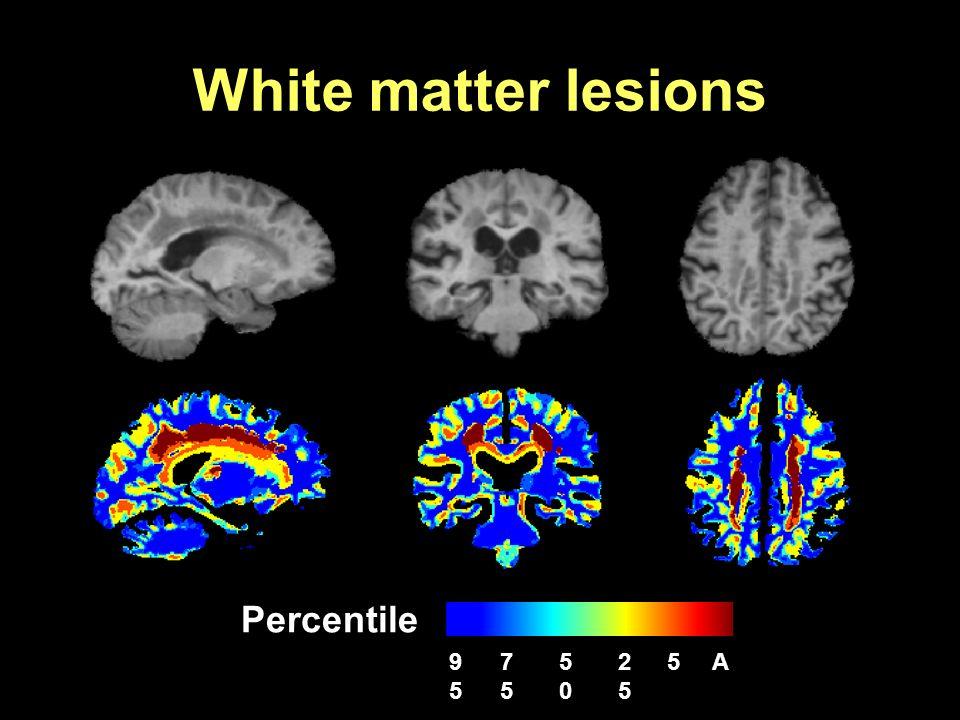 White matter lesions Percentile 95 75 50 25 5 A