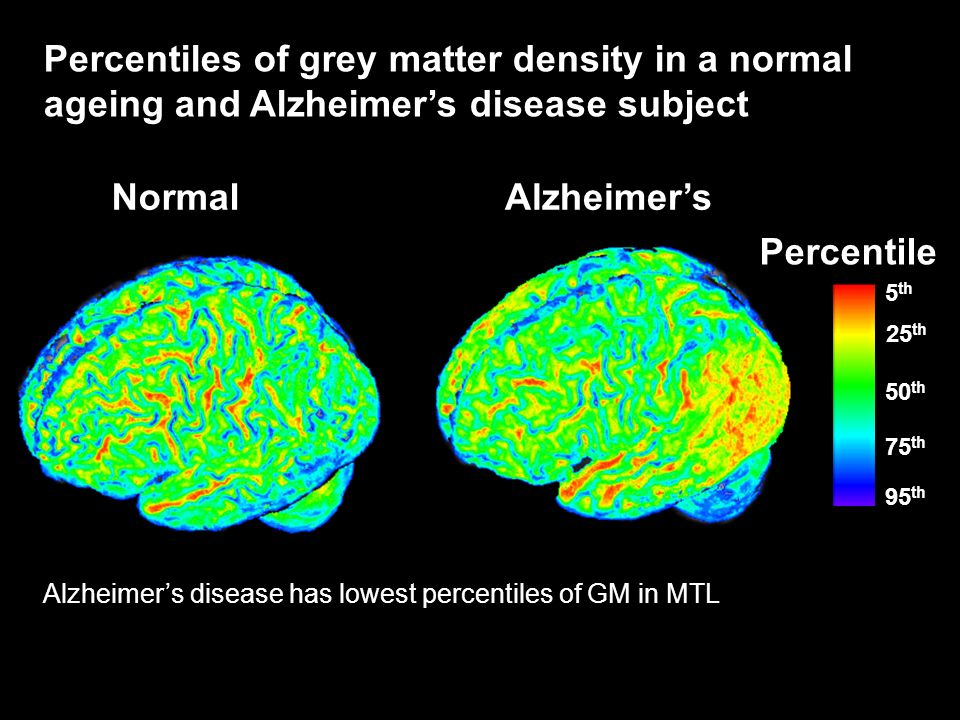 Percentiles of grey matter density in a normal ageing and Alzheimer's disease subject