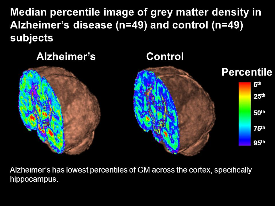 Median percentile image of grey matter density in Alzheimer's disease (n=49) and control (n=49) subjects