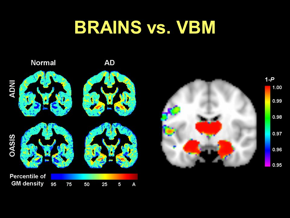 BRAINS vs. VBM