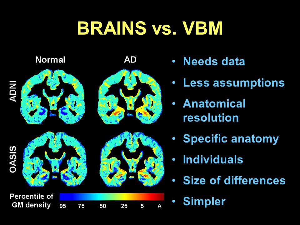 BRAINS vs. VBM Needs data Less assumptions Anatomical resolution