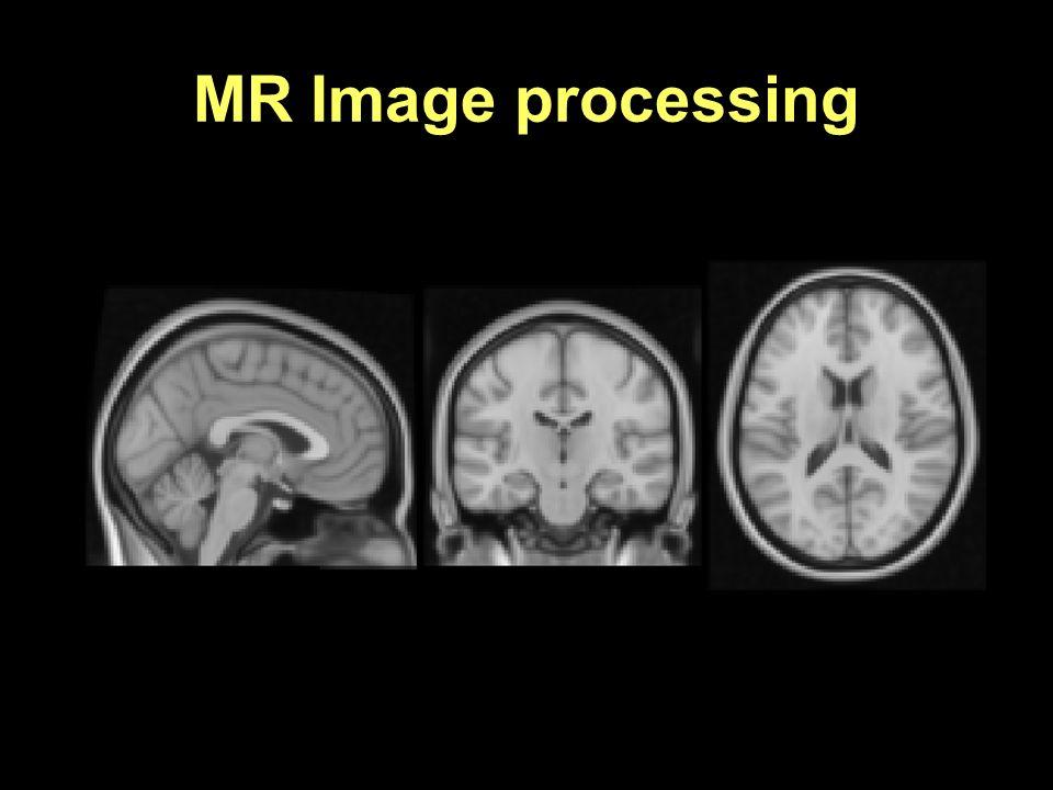 MR Image processing