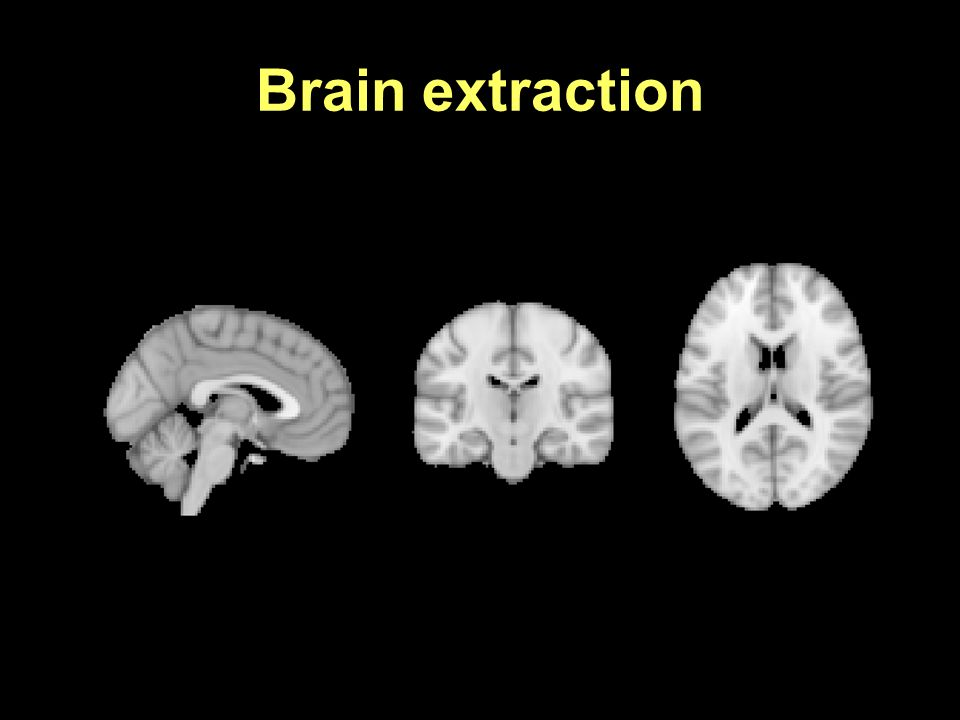 Brain extraction