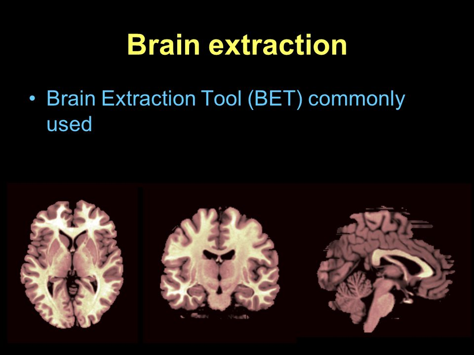 Brain extraction Brain Extraction Tool (BET) commonly used
