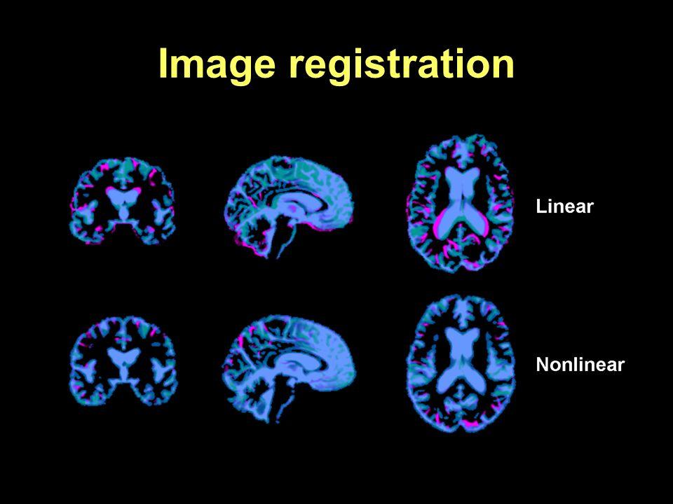 Image registration