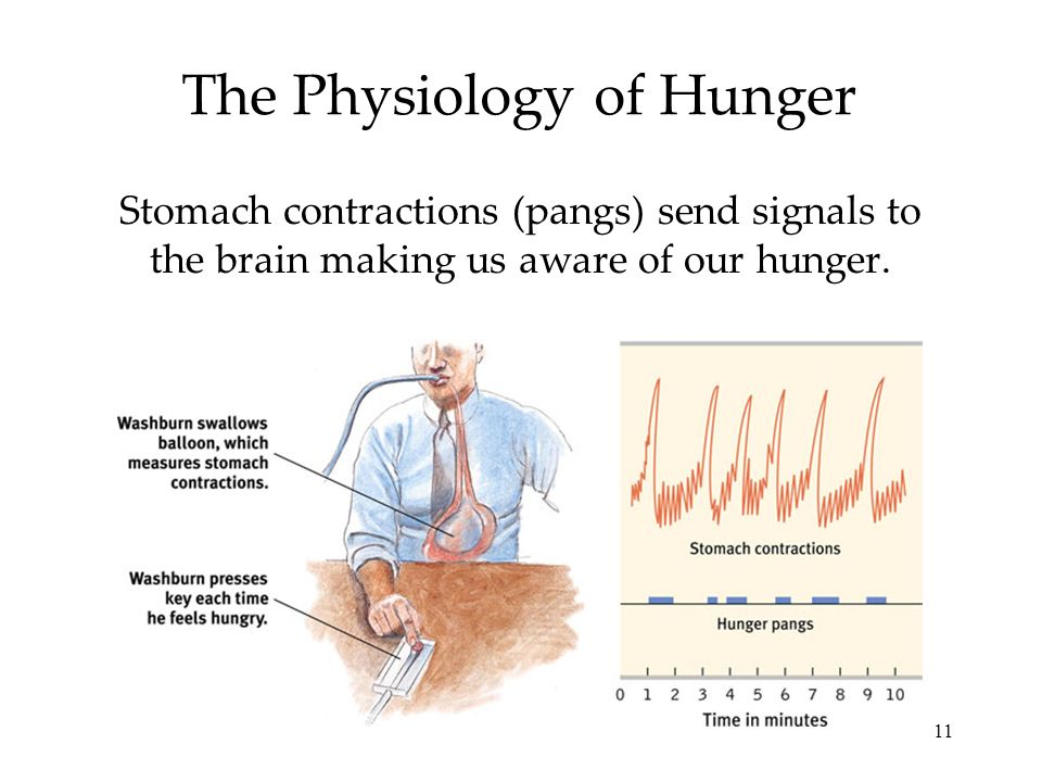 political factors cause of hunger Food shortage causes, effects and  and production capacity and socio-political factors determine distribution  as seen in malnutrition and hunger related.