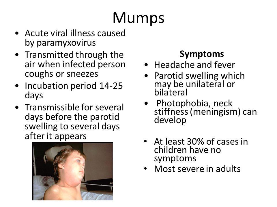 Mumps Acute viral illness caused by paramyxovirus