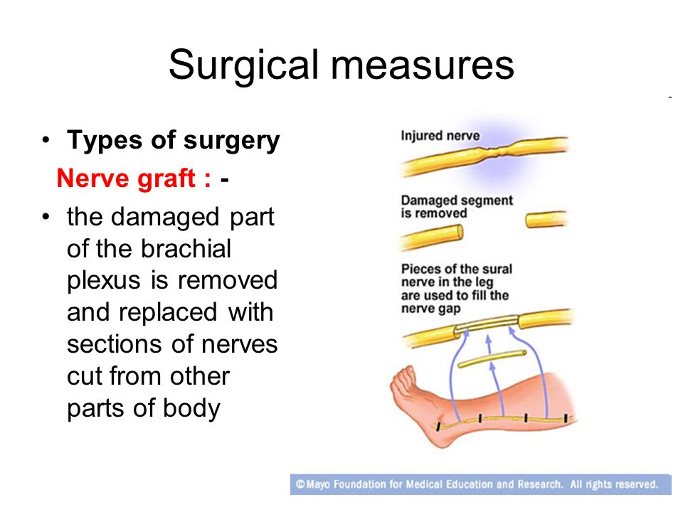 Peripheral Nerve Injuries Ppt Video Online Download