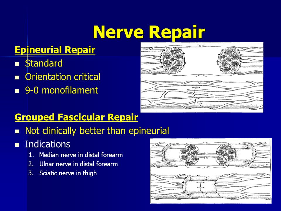 Repair of sciatic nerve defects using tissue engineered nerves