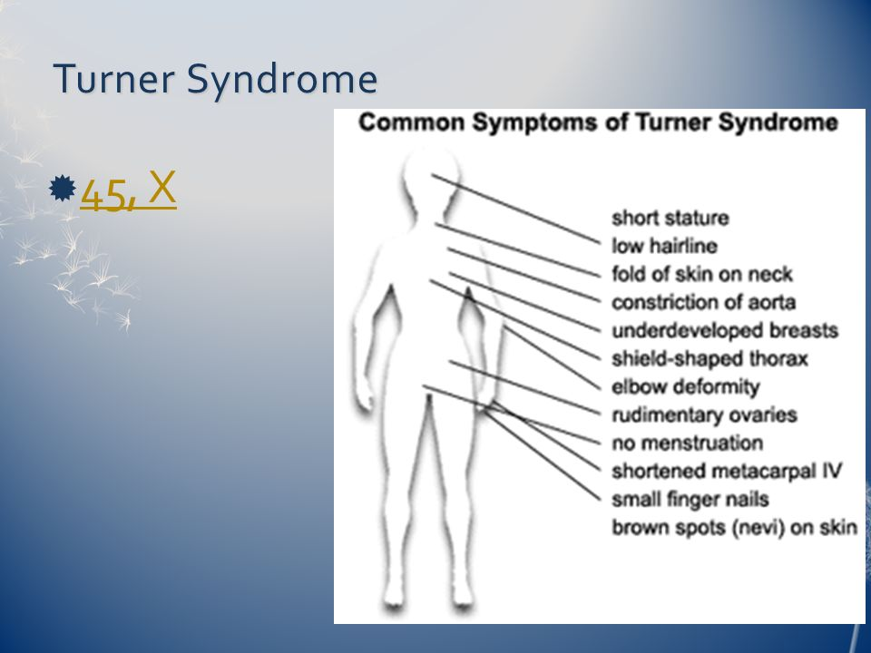 a comparison between turner syndrome and cat cry syndrome Turner's syndrome this consists of a developmental disorder of the ovaries with a feminine phenotype and a 45,x0 genotype or, in rare cases, a mosaic with genotype 45, x0 / 46, xx or 45, x0 / 46, xy , representing a male phenotype.